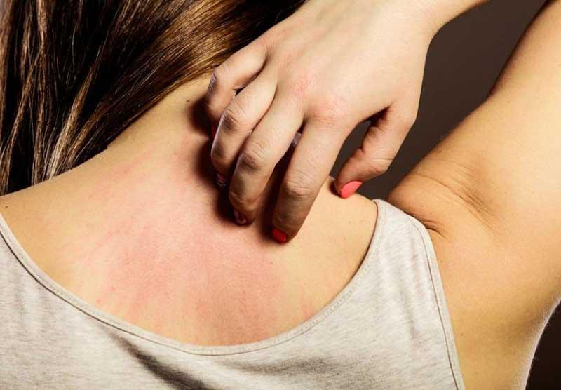 Picadura de pulga en personas